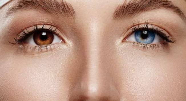 ojos-dos-colores-heterocromia-dreams